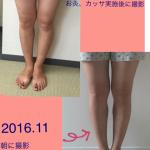 8月に受講して3ヶ月・・・ふくらはぎ、足の甲が・・・