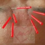 眉間のシワ、気になる原因と改善方法